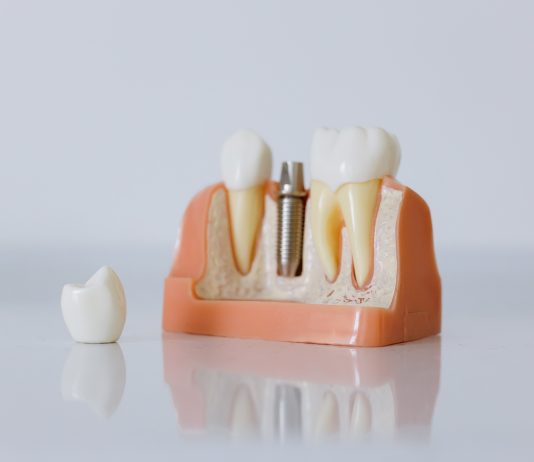 Comment payer moins cher son implant dentaire ?